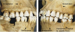 Difference between tooth fenestration and tooth dehiscence