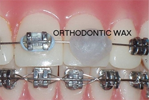 What is orthodontic wax