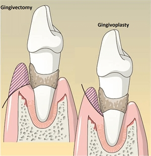 What is the difference between gingivectomy and gingivoplasty?