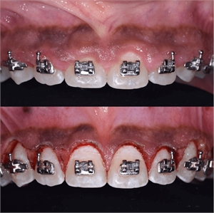 Gingivectomy procedure around orthodontic brackets to reshape and recontour the gum smile line.