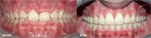 Gingivectomy surgical procedure - before and after pictures