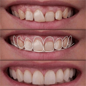 Gingivoplasty procedure performed before placing dental veneers. You can see the change in the gum margins and the more aesthetic result after the veneer cementation.