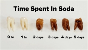 Teeth were dipped in Coca Cola. This is the tooth staining over time.