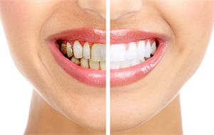 Superficial stains on teeth can be caused by excessive consumption of coffee, tea, red wine, dark juices and cigarettes.