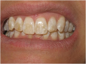 Fluorosis is a condition that causes poor dental tissues quality and tooth darkening that can go from white patches to yellow and dark brown spots.