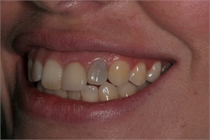 Non vital teeth (teeth that have been root filled) go darker with time.