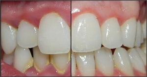 Tartar accumulation around anterior teeth make your teeth look darker.