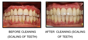 Dental scaling removes the calcified plaque, called teeth tartar, and cleans the superficial stains off the enamel surface