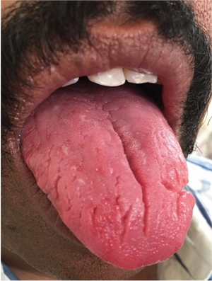 Fissured tongue is a benign condition of having multiple grooves, pits and fissures on the top of the tongue