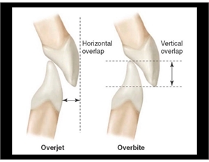 Overjet vs Overbite - horizontal and vertical overlap of the front teeth