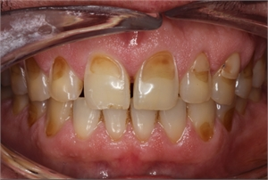 Teeth erosion due to overconsumption of acidic foods and drinks.