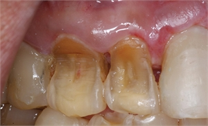 Enamel erosion is caused by acidic demineralization of the tooth surface. It can lead to sever wear and dentin exposure.