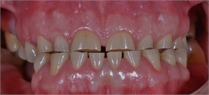 Dental attrition is caused by clenching and bruxing and leads to occlusal teeth wear.