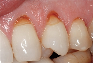 Teeth abrasion is a dental condition that involves enamel loss caused by external forces such as toothbrushes and toothpicks.