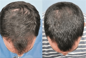 Using Regaine for hair loss - before and after photos