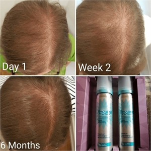 Minoxidil is the active ingredient of Regaine. This photo shows a patient after a daily use of Regaine daily. A picture is taken at the first day, after two weeks and after six months.