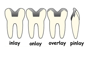 What is the difference between inlay, onlay, overlay and pinlay?