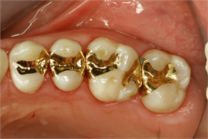 Gold inlays in situ (in the patient mouth)