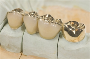 Porcelain fused to gold crowns and a gold overlay
