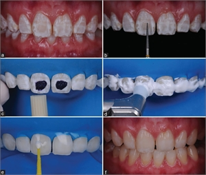Enamel microabrasion with phosphoric acid and diamond bur, followed by dental composite layering