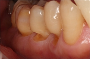 Tooth abfraction appears around the gum line as minuscule wedges or grooves.