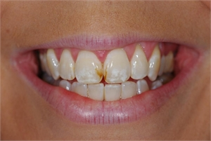 Initial tooth lesions look like white or brown spots on the teeth and are caused by demineralized enamel.