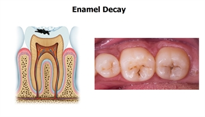 Enamel decay, also known as a superficial cavity, is an infected enamel structure on the teeth surface.
