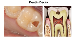 When the caries progresses into dentin we have a deep cavity, also known as dentin decay.