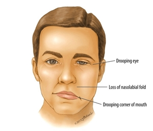 Everything about Bell's Palsy