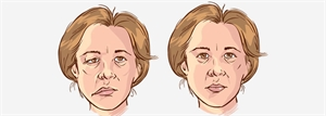 Unilateral facial paralysis may be a condition called Bell's Palsy