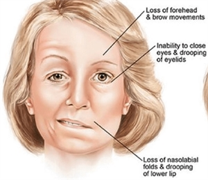Bell's Palsy facial paralysis