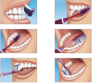 The Bass tooth brushing technique concentrates on cleaning dental plaque around the gum line. It is also known as the sulcus cleaning method