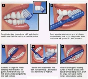 Bass tooth brushing technique and Modified Bass method for brushing teeth