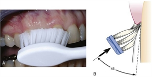 Stillman brushing technique - the bristles of the toothbrush are placed at the gum line and rolled towards the crown of the teeth along with back and forth strokes