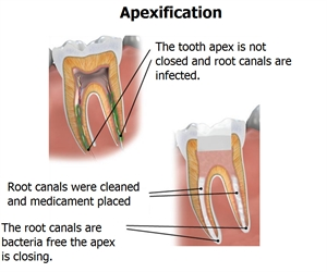 Apexification promotes the apex closure and is done when the tooth pulp is necrotic.