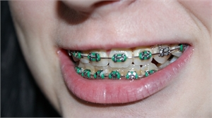 5 Tips to Take Care of Your Teeth When You Have Braces