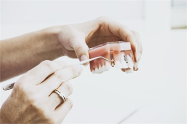 4 Questions to Ask Before Going for Dental Implant Surgery