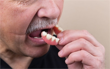 Are Digital Dentures the Right Solution for You