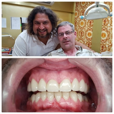 Smile Makeover session with our patient