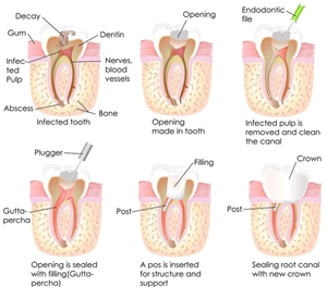 There are two ways to treat an abscess- remove the tooth or perform a root canal treatment. The endodontic therapy procedure removes the pathogenic bacteria from the root canal system and promotes periapical tissue healing.