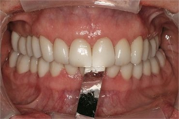 What is dental shimstock