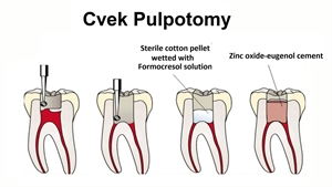 Cvek pulpotomy also known as partial pulpotomy