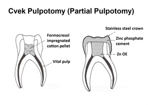 Partial pulpotomy, also known as Cvek pulpotomy, removes the crown pulp and leaves the vital pulp in the root canals