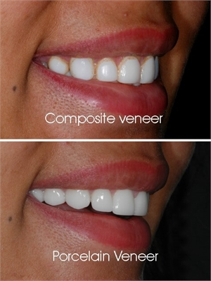 Composite veneers have the disadvantage of staining over a long period of time. Ceramic dental veneers do not change color