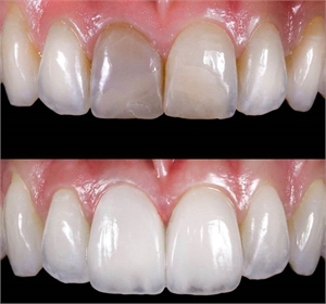 Dental veneers made out of Lithium disilicate glass ceramic, also known as porcelain
