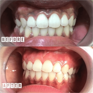 Gum whitening is a trendy dental procedure that lightens your gums.