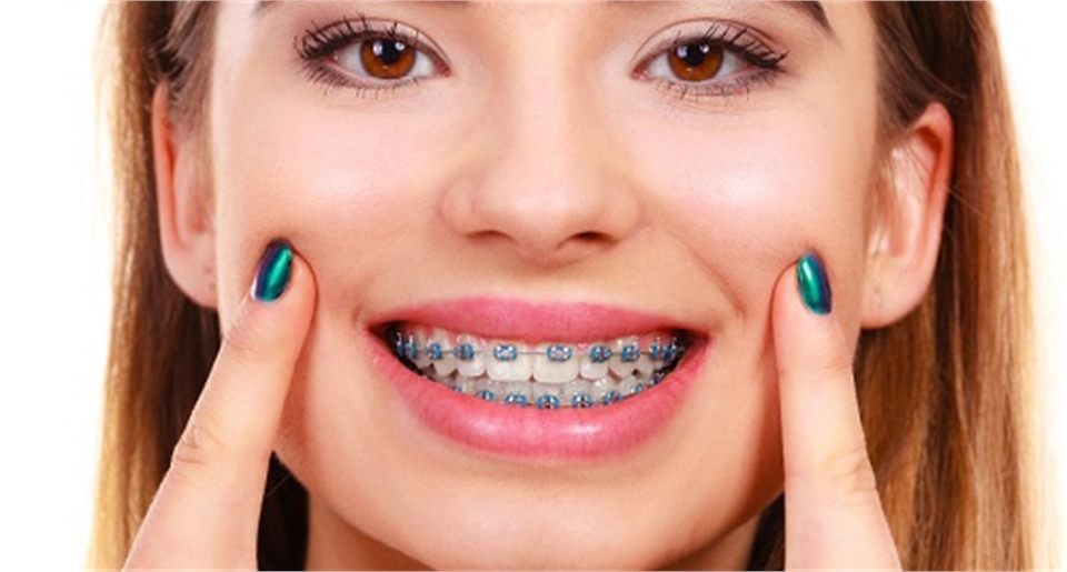 Braces Orthodontics Pediatrics- bop BRACES