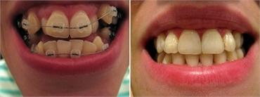 Alternatives in orthodontics