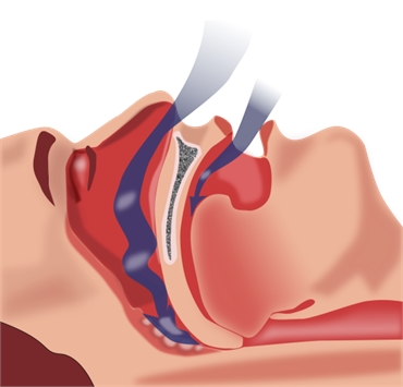 SIGNS YOU MIGHT HAVE SLEEP APNEA