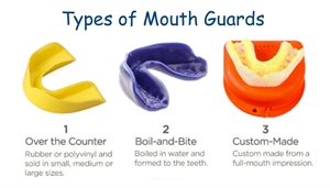 Types of Mouth guards - OTC (over the counter) mouth guard, boil & bite splint, custom made dental mouthguard